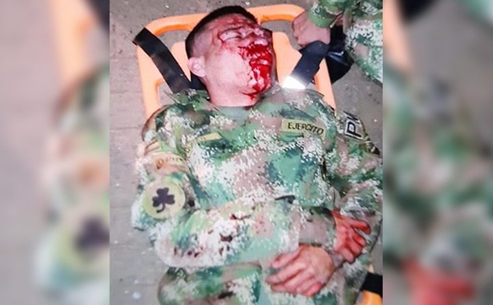 Soldado fue golpeado vilmente por varios delincuentes en el Batallón Pichincha en Cali